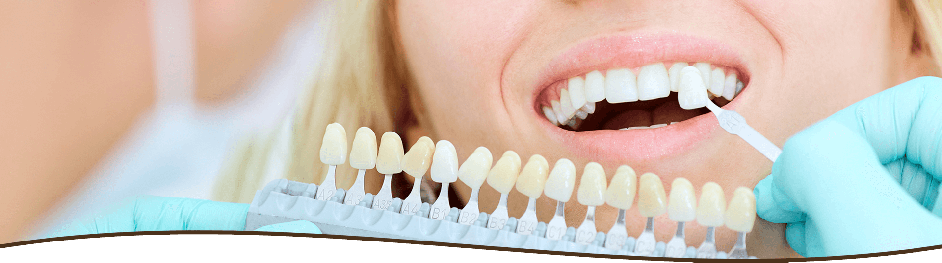 Dentist matching veneers