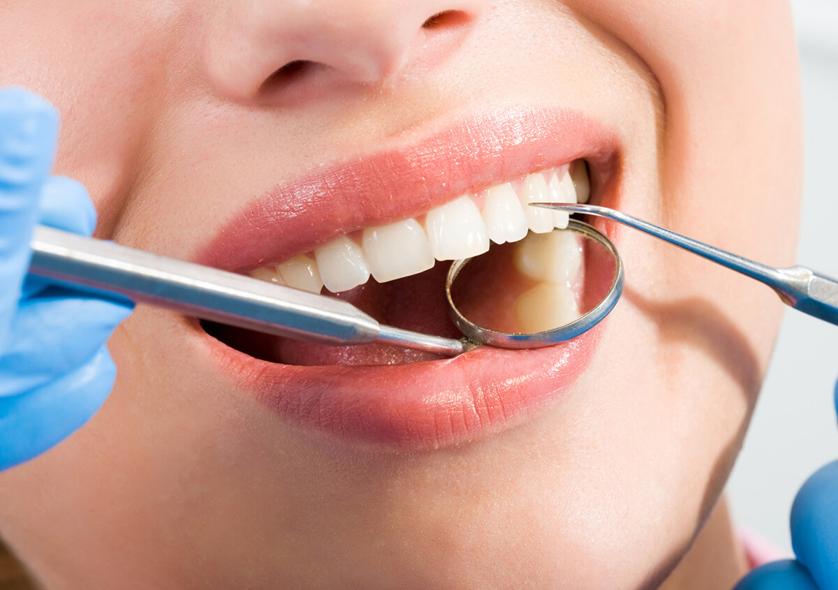 Add Some Shine to Your Smile with a Teeth Whitening Dentist in Petaluma, CA Area