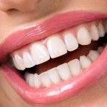 What are Dental Crowns and Get Dental Crowns In Petaluma CA Area