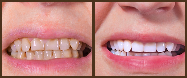 Cleaning & Prevention before and after results at North Bay Smiles Petaluma, CA cause 1