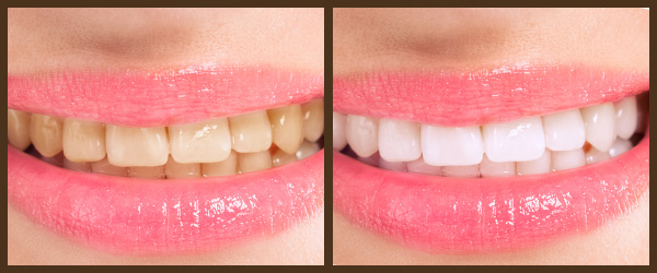 Cleaning & Prevention before and after results at North Bay Smiles Petaluma, CA cause 2