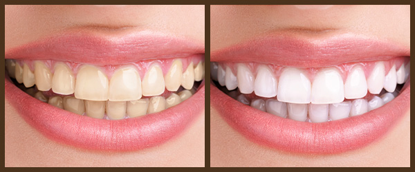 Cleaning & Prevention before and after results at North Bay Smiles Petaluma, CA cause 3