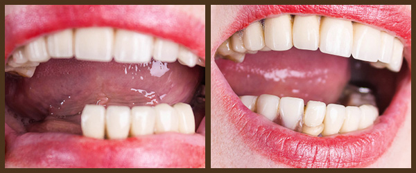 Dentures before and after results at North Bay Smiles Petaluma, CA cause 1