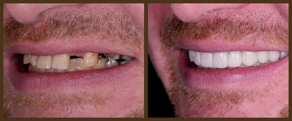 Dental Implants before and after results at North Bay Smiles Petaluma, CA cause 2