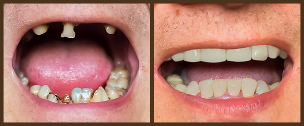 Dental Implants before and after results at North Bay Smiles Petaluma, CA cause 1