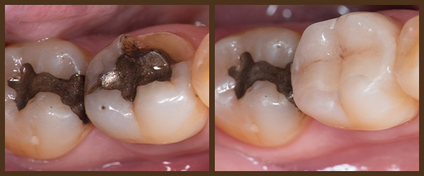 Porcelain Inlays and Onlays before and after results at North Bay Smiles Petaluma, CA cause 1