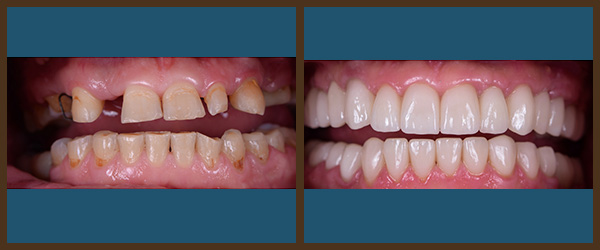 Procera® Crowns before and after results at North Bay Smiles Petaluma, CA cause 2