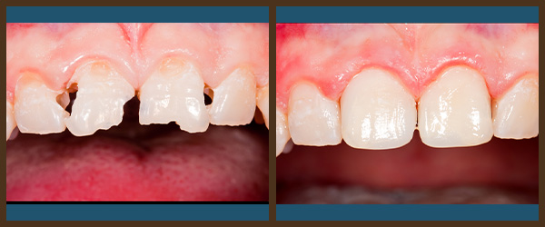 Restorations before and after results at North Bay Smiles Petaluma, CA cause 1