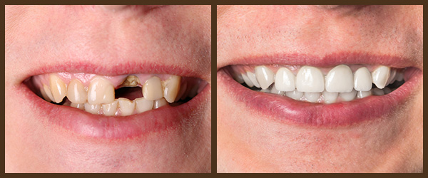 Restorations before and after results at North Bay Smiles Petaluma, CA cause 2