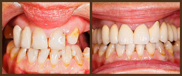 Restorations before and after results at North Bay Smiles Petaluma, CA cause 3