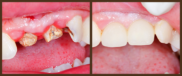 Root Canal Therapy before and after results at North Bay Smiles Petaluma, CA cause 1