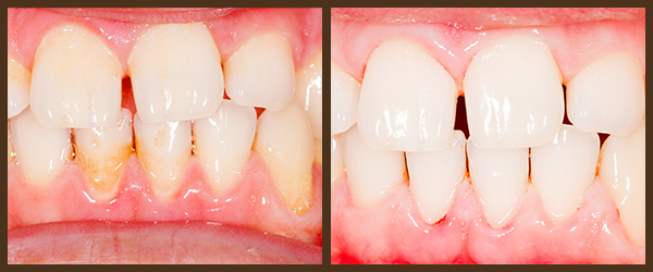Scaling & Root Planing before and after results at North Bay Smiles Petaluma, CA cause 1