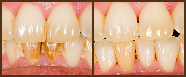 Scaling & Root Planing before and after results at North Bay Smiles Petaluma, CA cause 2