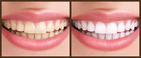 Teeth Whitening before and after results at North Bay Smiles Petaluma, CA