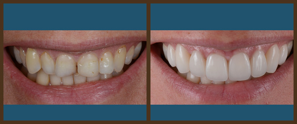 Porcelain veneers before and after results at North Bay Smiles Petaluma, CA cause 1