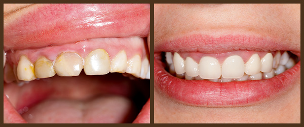 Porcelain veneers before and after results at North Bay Smiles Petaluma, CA cause 2