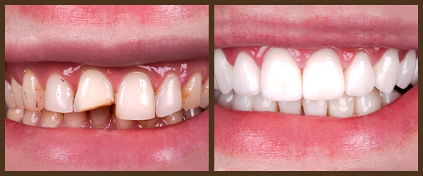 Porcelain veneers before and after results at North Bay Smiles Petaluma, CA cause 3