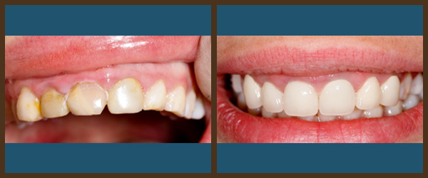 Porcelain veneers before and after results at North Bay Smiles Petaluma, CA cause 4